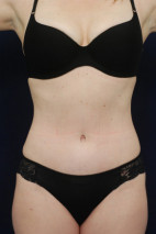 After Photo - Tummy Tuck - Case #23286 - Abdominoplasty - Frontal View