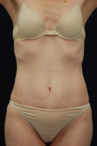 Before Photo - Tummy Tuck - Case #23287 - Abdominoplasty - Frontal View