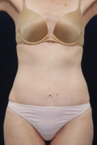 After Photo - Tummy Tuck - Case #23287 - Abdominoplasty - Frontal View