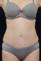 After Photo - Tummy Tuck - Case #23288 - Abdominoplasty - Frontal View