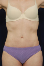 After Photo - Tummy Tuck - Case #23289 - Abdominoplasty - Frontal View