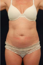 Before Photo - Tummy Tuck - Case #23294 - Abdominoplasty - Frontal View