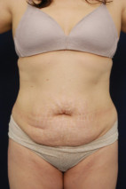 Before Photo - Tummy Tuck - Case #23298 - Abdominoplasty - Frontal View