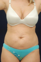 Before Photo - Tummy Tuck - Case #23301 - Abdominoplasty - Frontal View