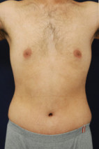 After Photo - Tummy Tuck - Case #23302 - Abdominoplasty - Frontal View