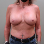 After Photo - Breast Augmentation - Case #23384 - Bilateral Breast Augmentation with Saline Implants - Frontal View
