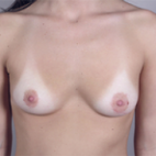 Before Photo - Breast Augmentation - Case #2922 - Breast Augmentation New Jersey - Frontal View