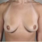Before Photo - Breast Augmentation - Case #2924 - Breast Augmentation New Jersey - Frontal View