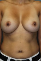 After Photo - Breast Augmentation - Case #3438 - Frontal View