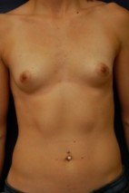 Before Photo - Breast Augmentation - Case #3477 - Frontal View