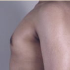 After Photo - Gynecomastia - Case #2930 - Gynecomastia New Jersey - Lateral View