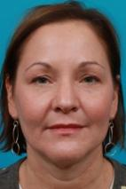 Before Photo - Eyelid Surgery - Case #2532 - Upper Blepharoplasty - Frontal View