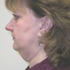 Before Photo - Facelift - Case #3429 - Oblique View