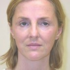 Before Photo - Facelift - Case #3432 - Facelift and Rhinoplasty - Frontal View
