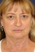 Before Photo - Facelift - Case #3436 - Frontal View