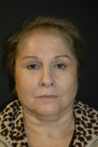 Before Photo - Facelift - Case #3487 - Facelift, Lateral Browlift, Fat Transfer - Frontal View