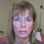 Before Photo - Fillers - Case #3449 - Cheek injections using Radiesse - Frontal View