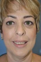 After Photo - Botulinum Toxin - Case #2961 - Gummy Smile treatment with Botulinum Toxin A  - Frontal View