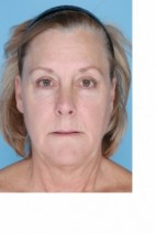 Before Photo - Liposuction - Case #3455 - Neck and Chin Liposuction - Frontal View