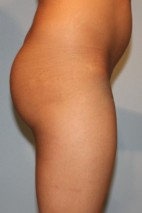 Before Photo - Fat Transfer - Case #3481 - Large Fat Graft to Buttocks - Lateral View