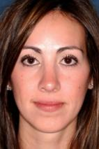 After Photo - Nose Surgery - Case #2563 - Primary Rhinoplasty - Frontal View