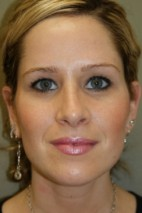 After Photo - Nose Surgery - Case #3479 - Rhinoplasty - Frontal View