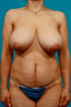Before Photo - Tummy Tuck - Case #2496 - Mommy Makeover - Frontal View