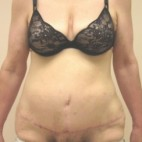 After Photo - Tummy Tuck - Case #3448 - Abdominoplasty with ventral hernia repair - Frontal View